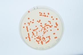 """Unser """"Haustier"""" Haloferax volcanii - orange Kolonien, die auf einem Nähragar wachsen. Bild: Elvira Eberhardt/Universität Ulm"""